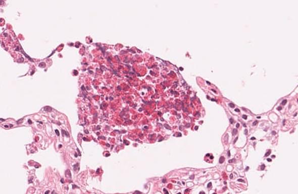 Chronic eosinophilic pneumonia high 1
