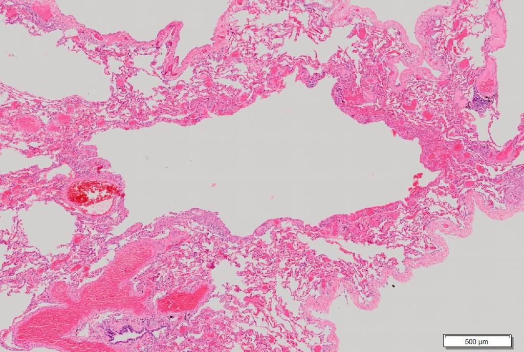 Lymphangioleiomyomatosis low 2